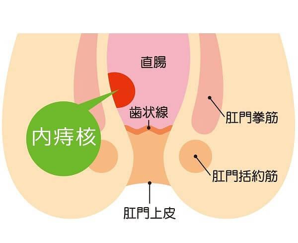 内痔核の主な症状