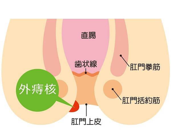 外痔核の主な症状